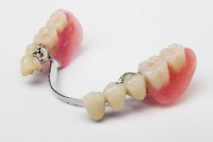 Bridges-dentures