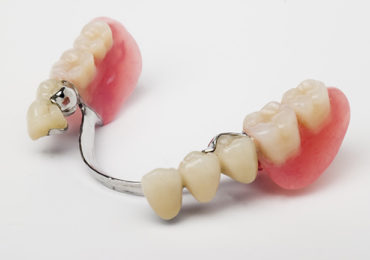 Bridges-dentures
