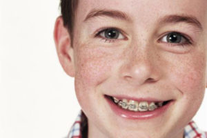 your child needs braces