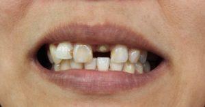 Loosing Tooth