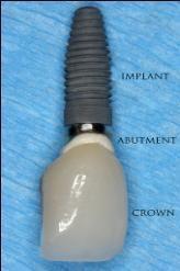 tooth replacement_edmonton dentist