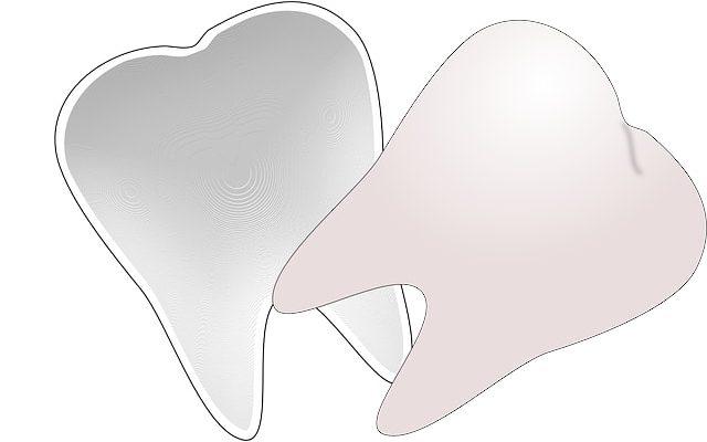 wisdom tooth_downtown dental