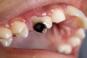Causes Of Tooth Decay