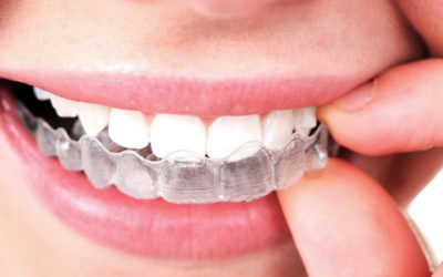 People Have About Invisalign