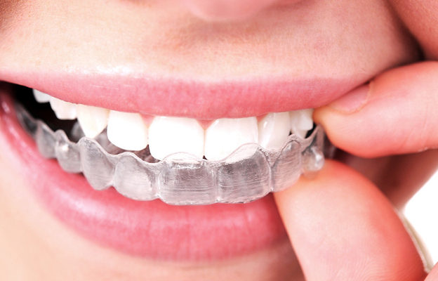 Pros and Cons of Invisalign