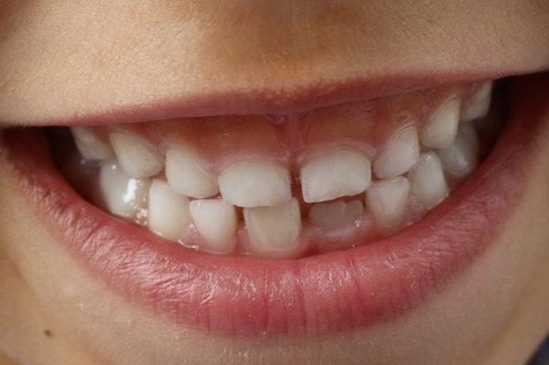Causes of Misaligned Teeth
